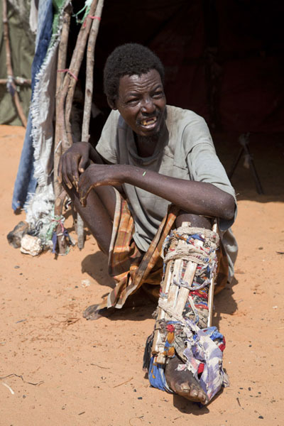 Refugee with broken leg after an accident, waiting for the leg to heal | Mogadishu vluchtelingenkamp | Somalië