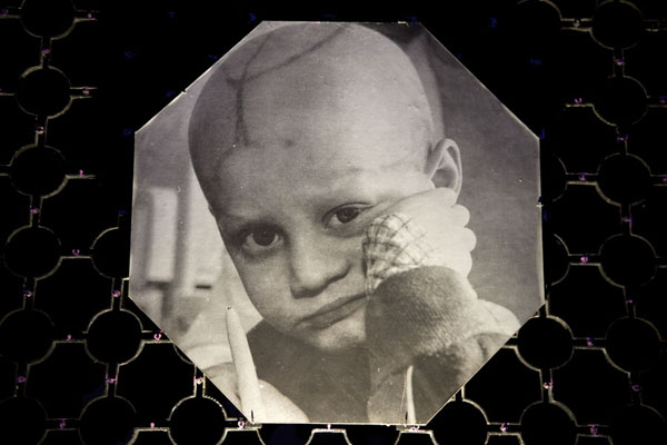 Picture of one of the many affected kids of the nuclear disaster of 1986 | Chernobyl Museum | Ukraine